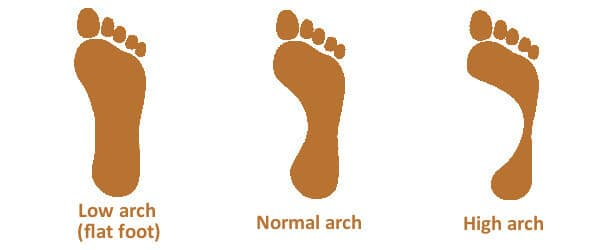 https://ferebres.com/wp-content/uploads/2016/09/foot-arch-types-high-flat-normal-low.jpg