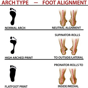 Image result for type of foot arch